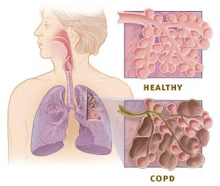Healthy Alveoli and Damaged Alveoli